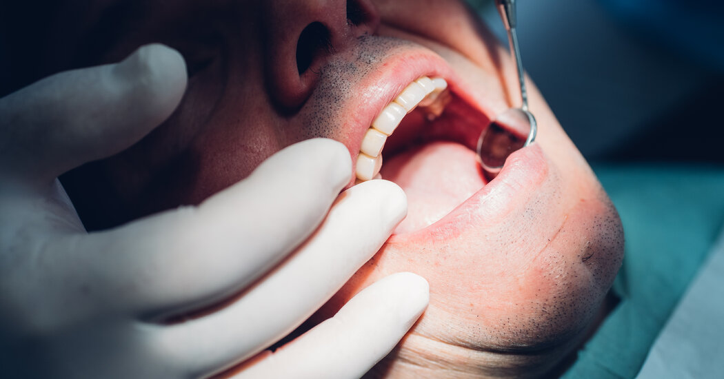 Dentists diagnose the infection of cracked teeth.  whats going on?